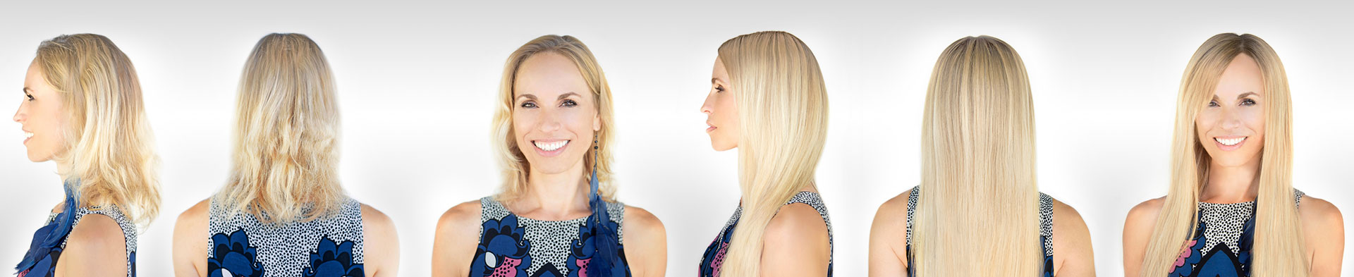 Alopecia Chemotherapy Wigs Hair Extensions Hair Pieces Albany Ny
